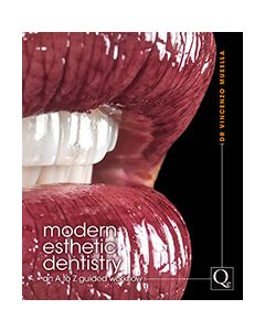 Modern Esthetic Dentistry: An A to Z Guided Workflow