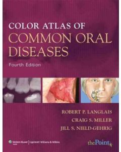Common Oral Diseases